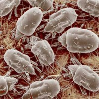 House-dust-mites